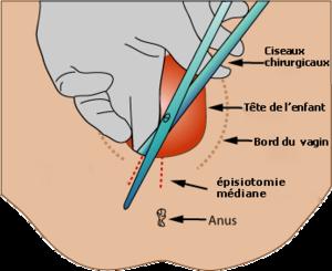 épisiotomie 2